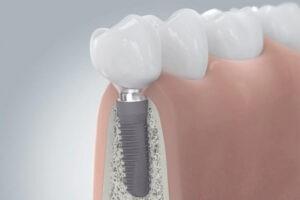 La chirurgie orale et péri-implantaire