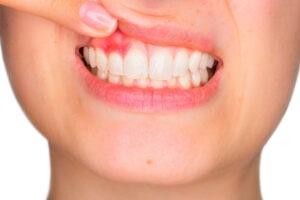 La parodontologie médicale & chirurgicale